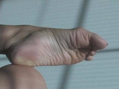 Compare these Wrinkles in the feet